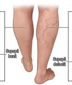Picior afectat de varice